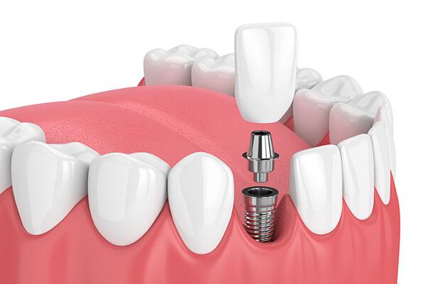 人工歯根を埋入して失った歯を補う方法です