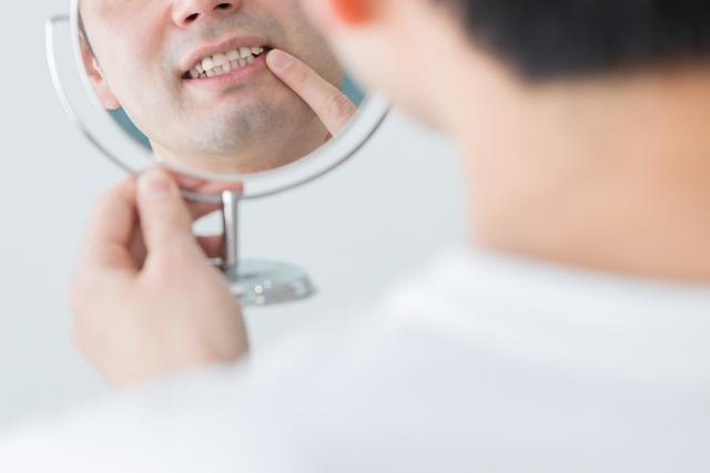 歯が黄ばむ原因は?